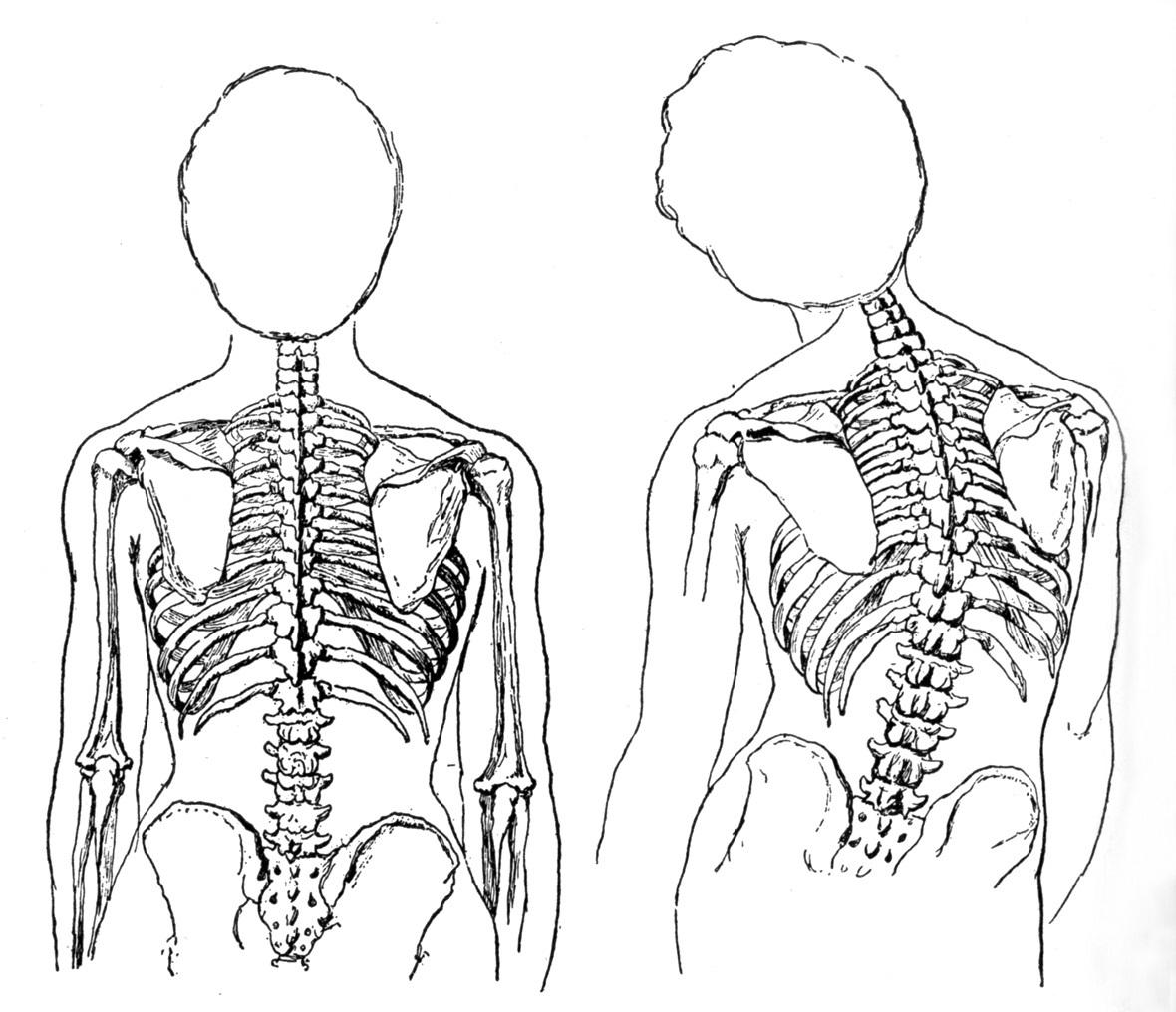 ajuste postural en Educación Física